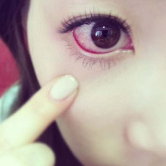 SNSD Taeyeon red eye selca